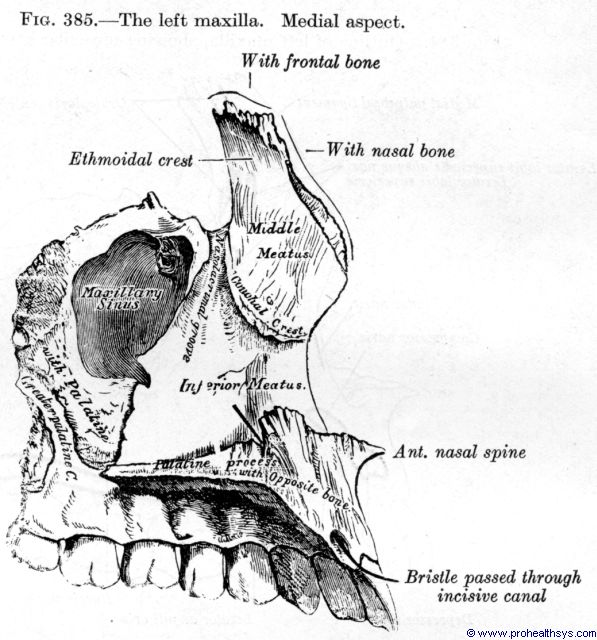 Maxilla medial view - Figure 385