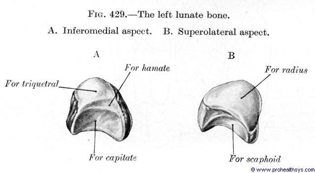 Lunate bone inferomedial and superiolateral views - Figure 429