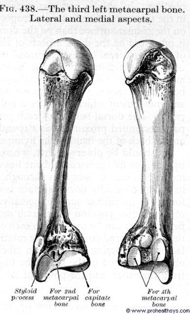 Third metacarpal bone lateral and medial views - Figure 438