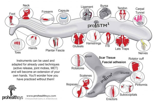 IASTM-Vizniak-proSTM1-proSTM2