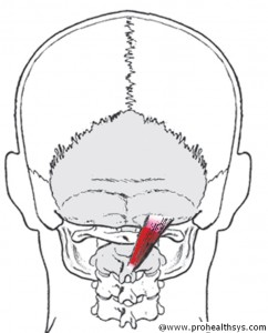 CS AN Sub-RCP_Major