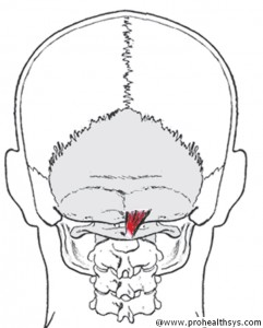 CS AN Sub-RCP_Minor