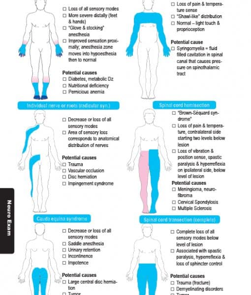 120 sensory nerve loss patterns
