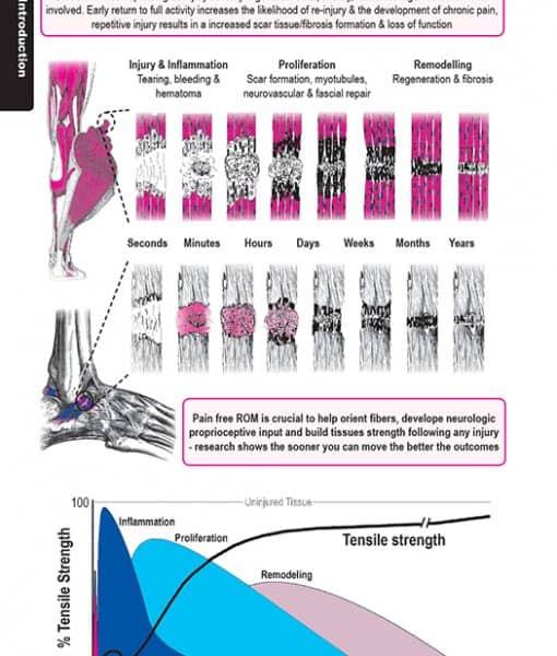 32 Muscle ligament injury vizniak