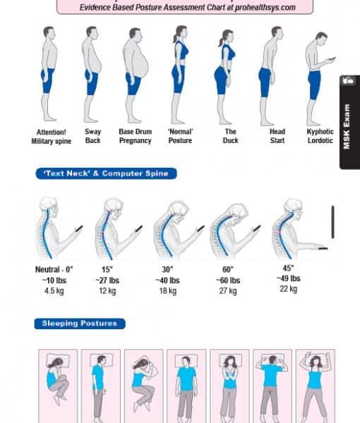 43 posture assessment vizniak