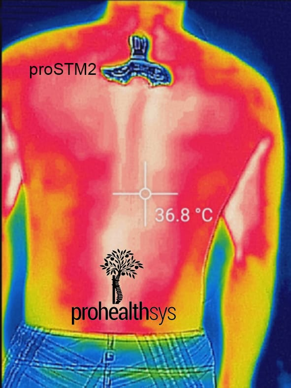 proSTM2 thermal image vizniak